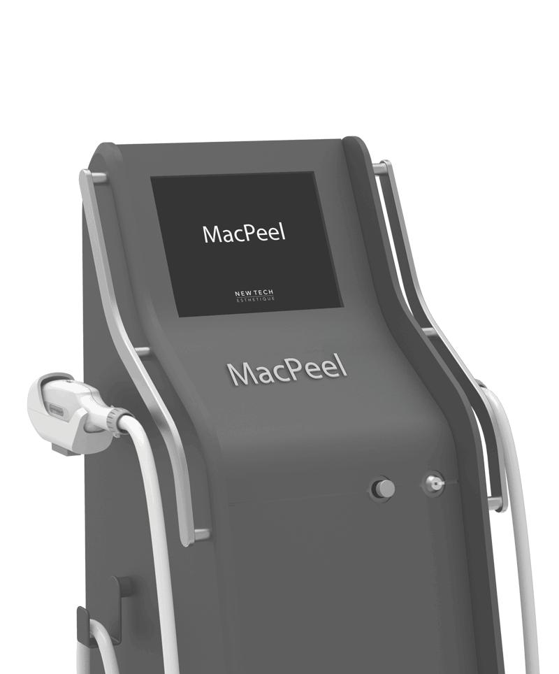 MacPeel